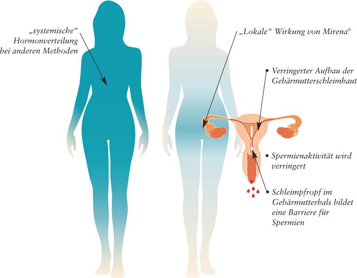 Faktencheck zur Hormonspirale Mirena / Jaydess / Kyleena ...  Faktencheck zur...